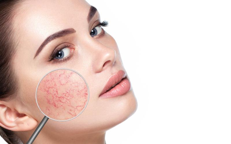 hogyan kell kezelni a homlok vörös foltjait a sár gyógyítja-e a pikkelysömör