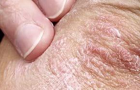 pikkelysömör kezelésére hiv olyan betegségek, amelyekben vörös foltok jelennek meg a bőrön