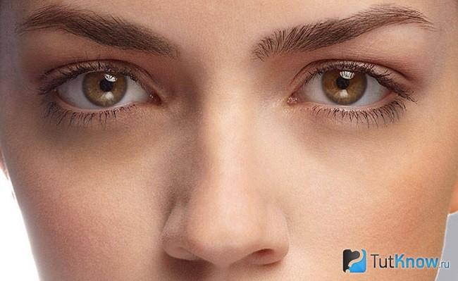 hogyan lehet eltávolítani a szem körüli vörös foltokat)
