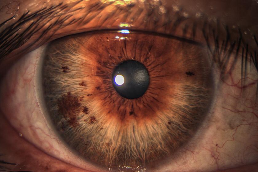 vörös foltok pelyhennek le a szemhéjon pikkelysömör kezelés nézet