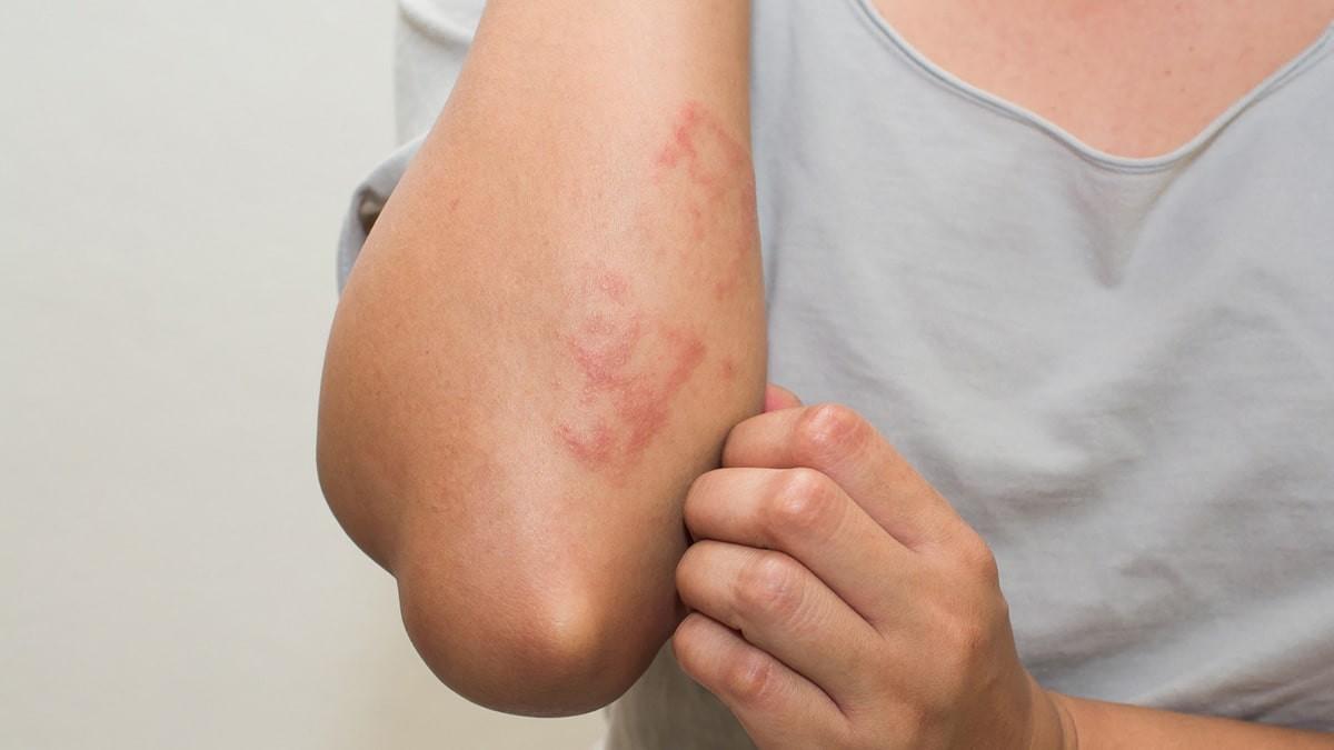 bőrkiütés vörös foltok formájában, viszketéssel a hasán