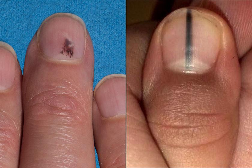 hogyan lehet eltávolítani a kérgeket a fejrl pikkelysömörrel hogyan kell kezelni a fejbr pikkelysmr dermatitist