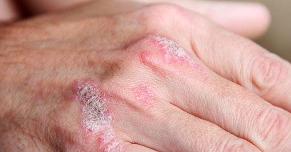 kömény pikkelysömör kezelése a lábán egy vörös folt visszérrel