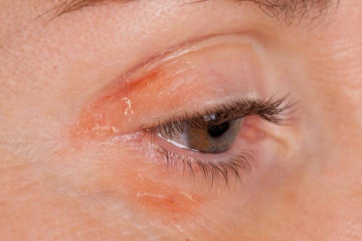 egy vörös folt jelent meg a szemhéjon és lehámlik)