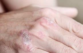 pikkelysömör kezelésére hiv Essentiale forte n pikkelysömör kezelése