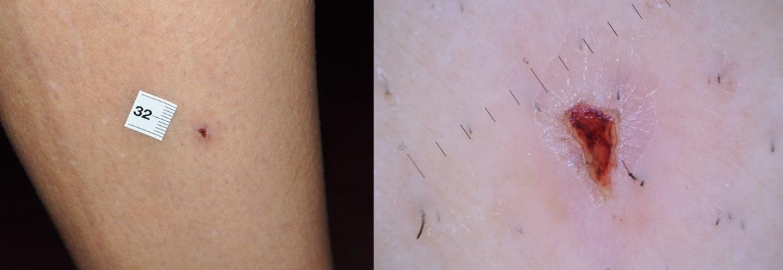 Festékes anyajegy tünetei és kezelése