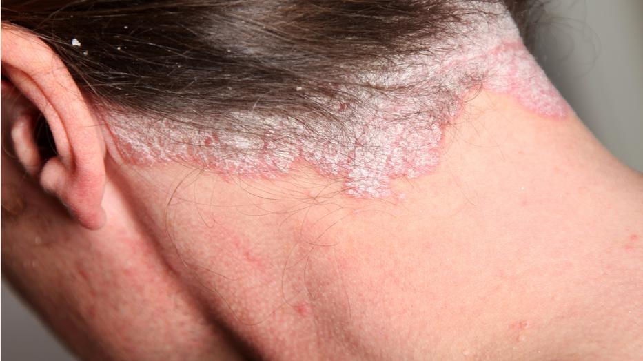 biológiai terápia a pikkelysömör kezelésében vörös foltok és fájdalom a lábakban