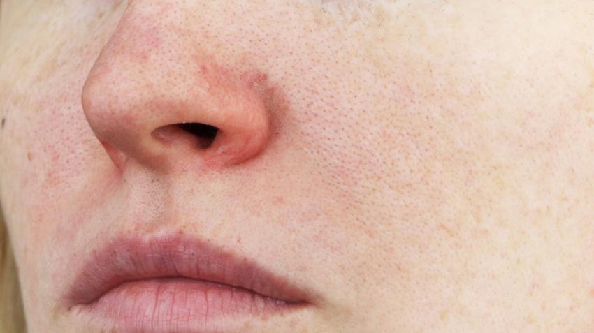 vörös foltok az arcon és az orron Thai krém pikkelysömörhöz