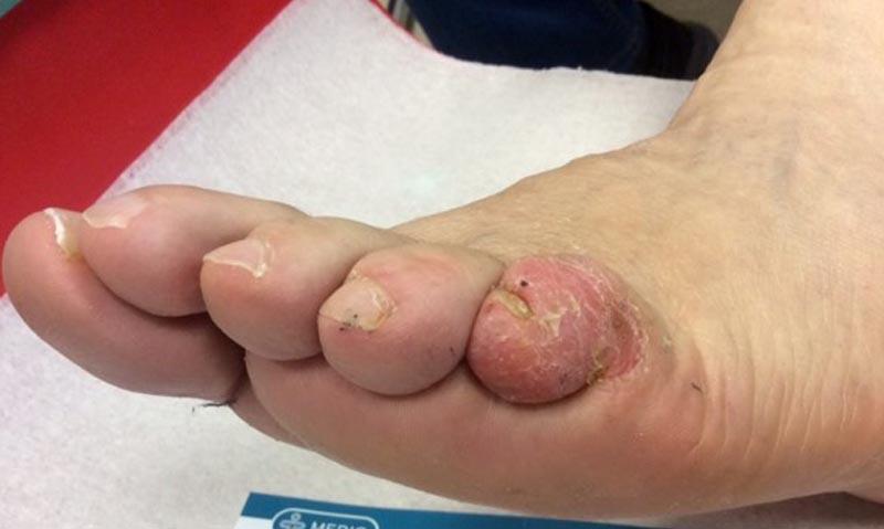 vörös lábfoltok kezelése cukorbetegségben vörös foltok a testen a lábon