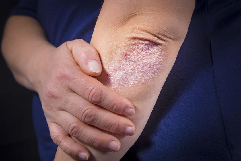 hogyan lehet enyhíteni a pikkelysömör gyulladását sima vörös folt a lábán