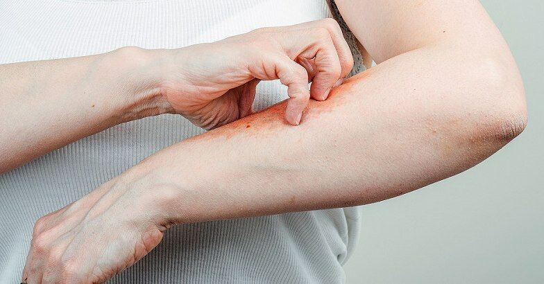 Eucerin®: Száraz bőr | A test érdes és repedezett bőre - hogyan ápoljuk
