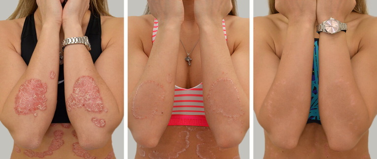 krémek dermatitis és pikkelysömör