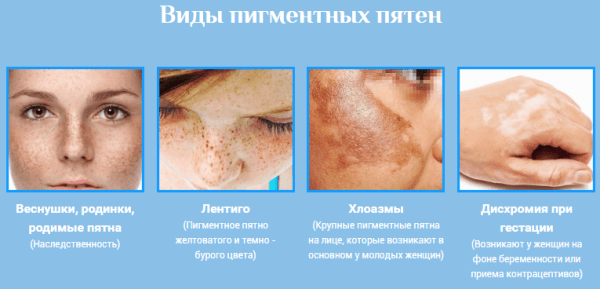 hogyan lehet eltávolítani a vörös foltokat az arckrémen