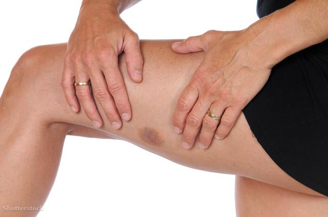 vörös foltok, például a lábak véraláfutása, a cukorbetegség jele