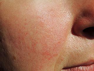 vörös pikkelyes foltok az orrán és az arcán)