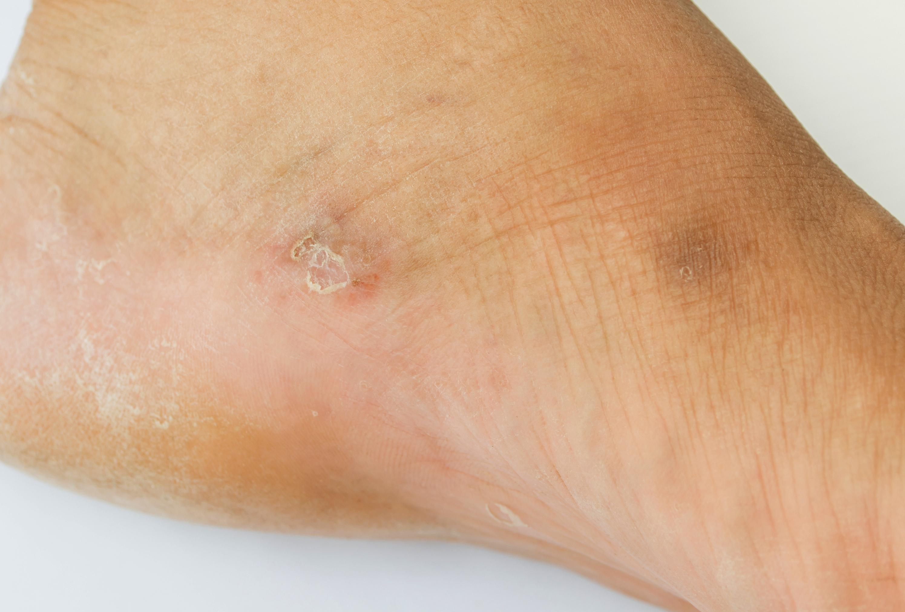 vizes vörös foltok a lábakon enyhíti a pikkelysömör súlyosbodását a fején