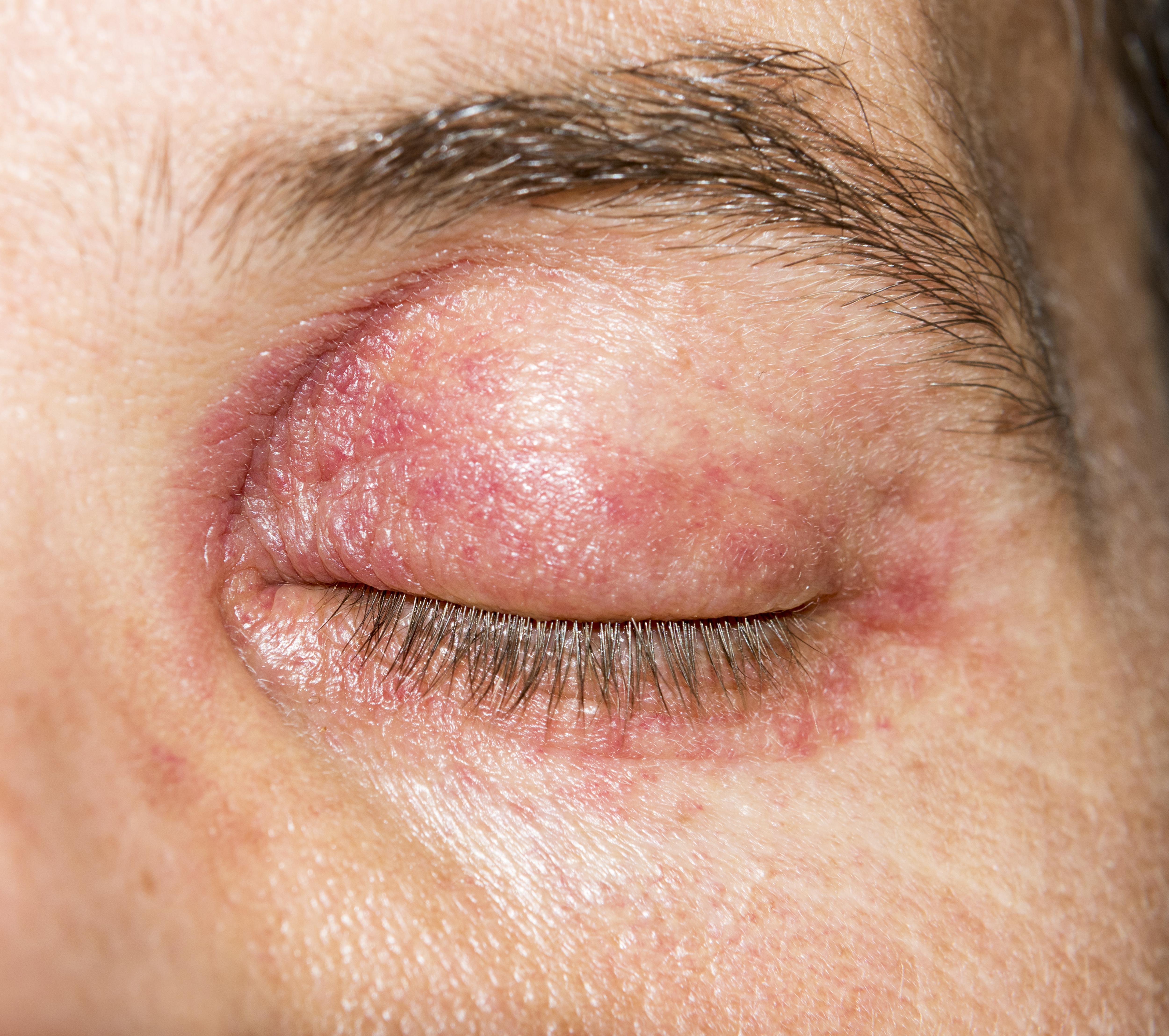 hogyan kell kezelni a test vörös hámló foltjait