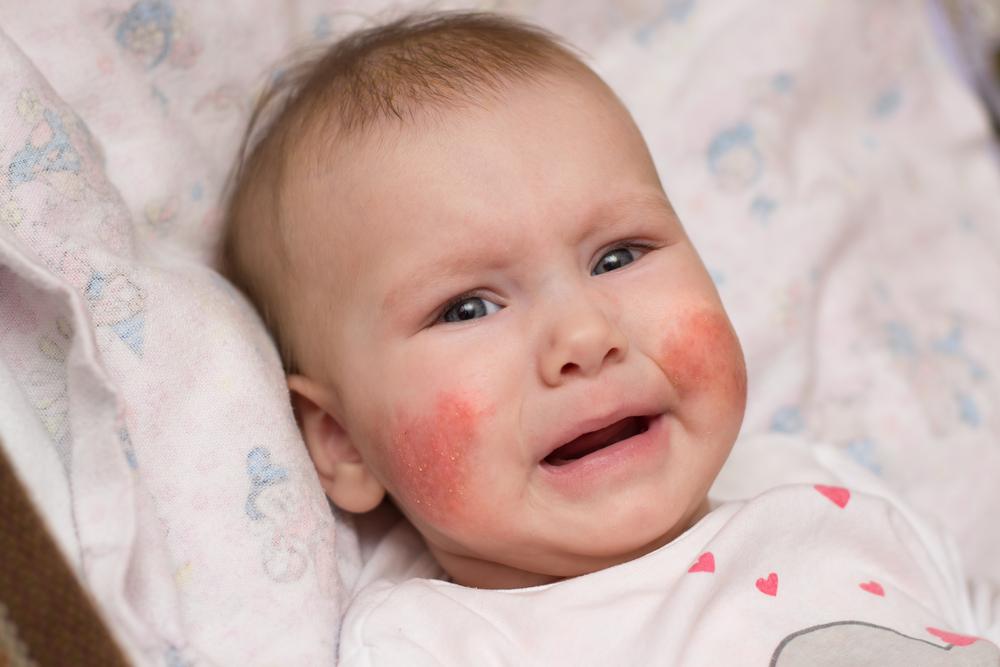 vörös foltok az arcon és a nyakon fotó