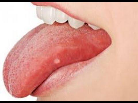 vörös foltok a nyelven felnőttek kezelésében