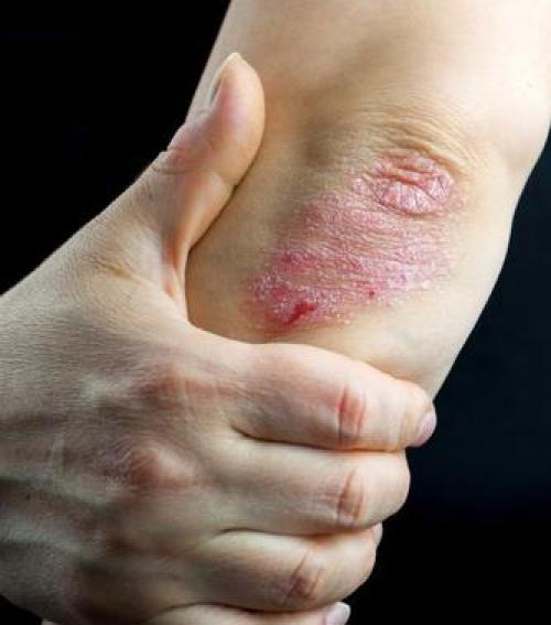 bischofite a pikkelysmr kezelsben nyári vörös foltok a lábakon
