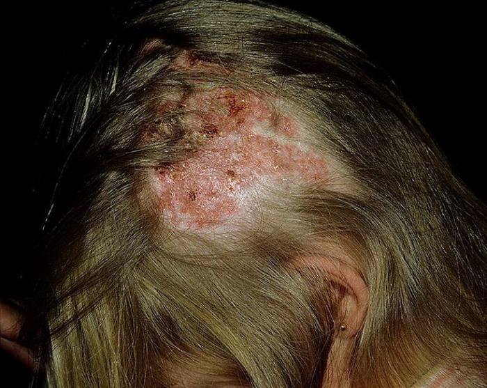 egy vörös folt fáj a fejbőrön)