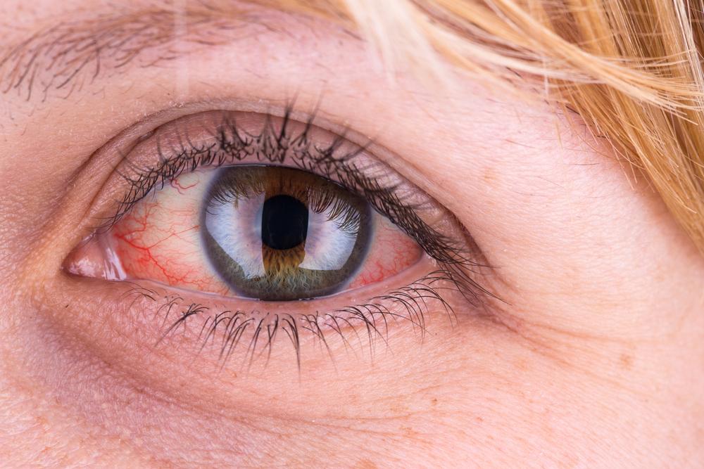 vörös viszkető folt a felső szemhéjon
