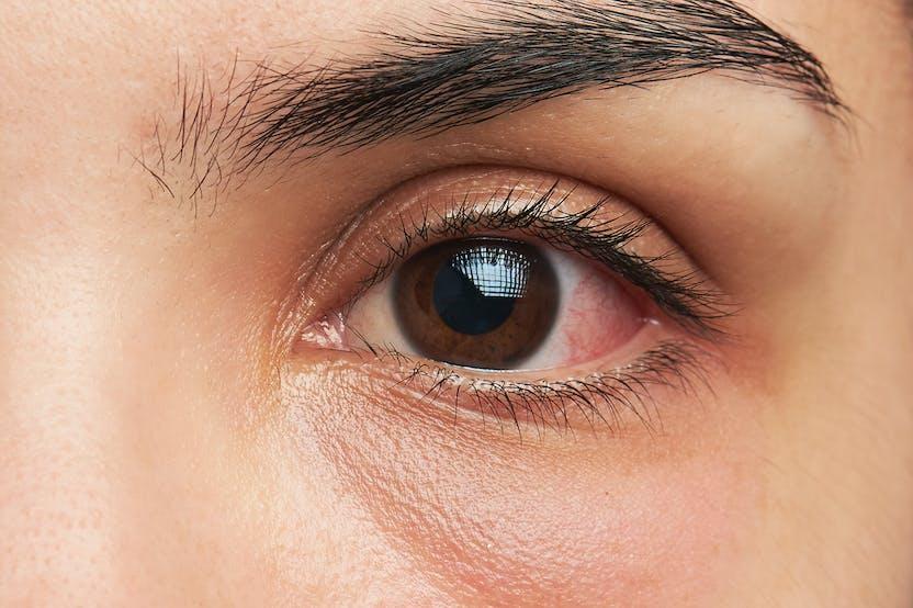 vörös folt a szem alatt és pelyhek