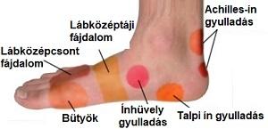 vörös folt a lábán és fájdalom vörös foltok a nagylábujjon