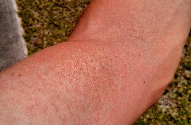 testét vörös foltok és duzzadt lábak borítják gygytsa van a pikkelysmr ellen