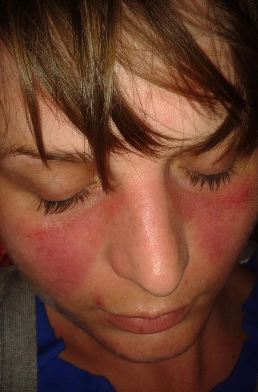 vörös szimmetrikus foltok az arcon