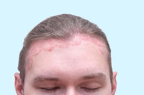 biológiai terápia a pikkelysömör kezelésében vörös foltok vannak az arcon és az arc ég