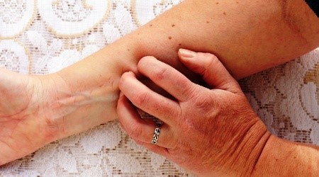 psoriasis miscarriage risk