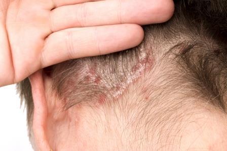 pikkelysömör kezelése a fej népi gyógymódjaival vörös puffadt foltok a bőrön