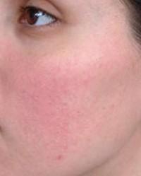 vörös foltok jelentek meg az arcon; mi ez?