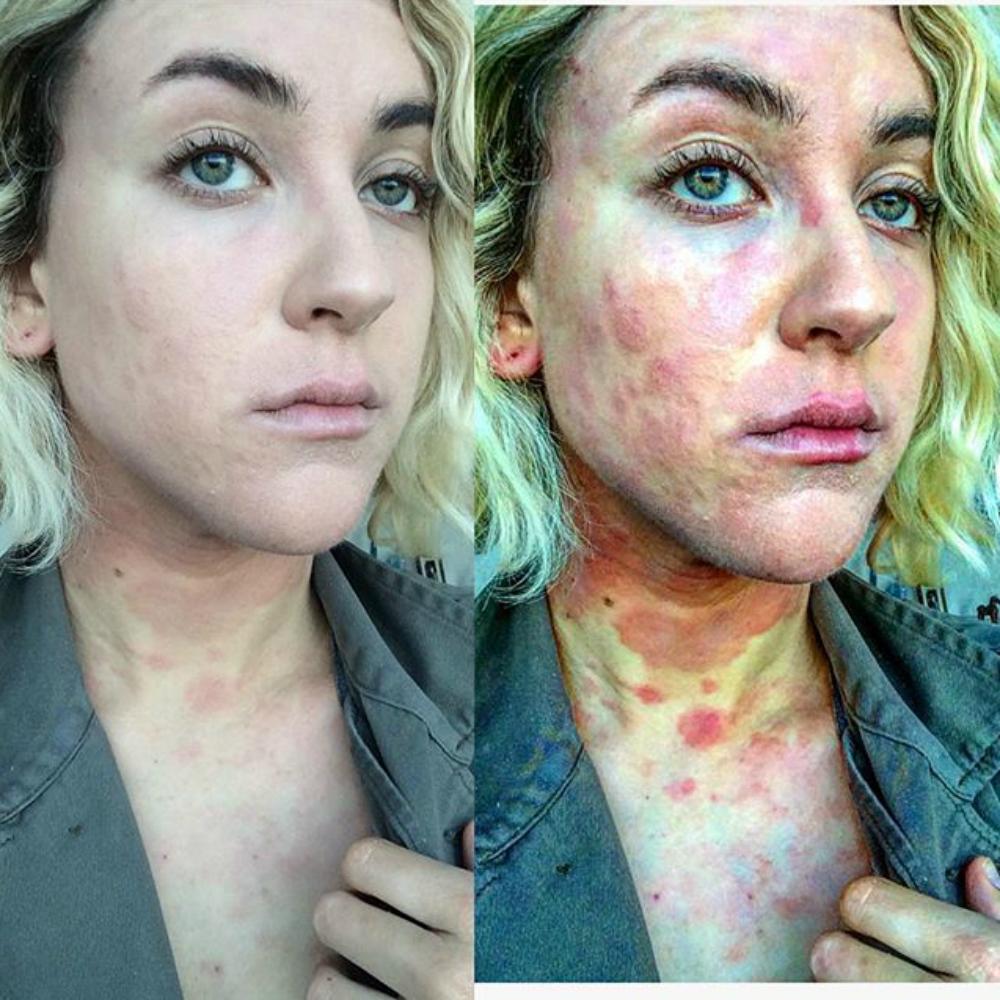 pikkelysömör vastagbél tisztító kezelés cink paszta az arc vörös foltjaihoz