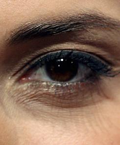 vörös pikkelyes foltok a szem alatti bőrön