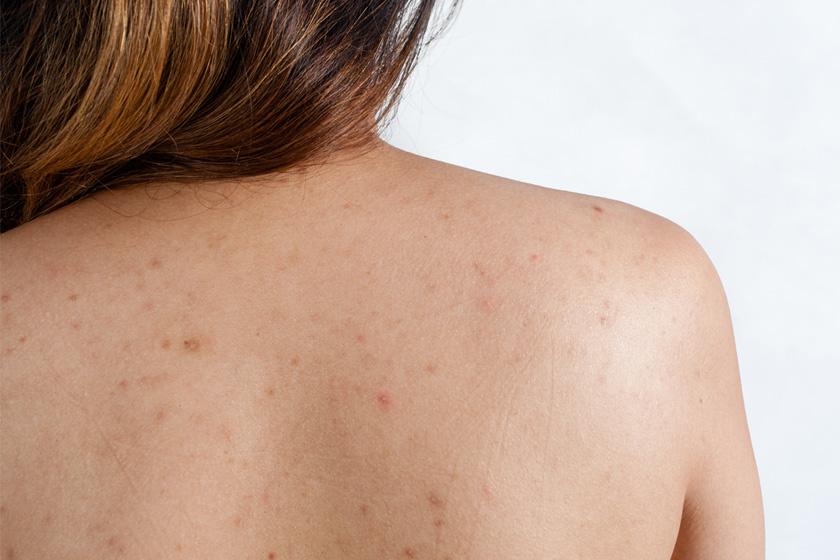 Gyakori bőrproblémák: Mi a normális és mikor kell bőrgyógyászhoz fordulni?