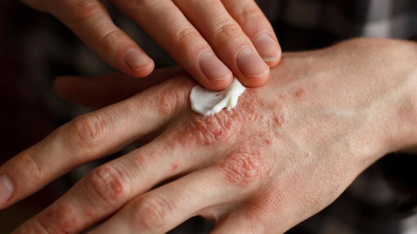 Kenőcsök a kezek bőrének pikkelysömörének kezelésére, A pikkelysömör tünetei