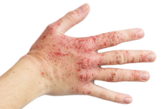 a kéz ujjai között vörös folt viszket