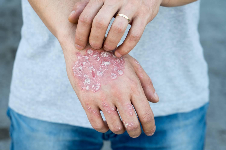 a pikkelysömör betegség jelei, lefolyása és kezelése libadombok és vörös foltok jelentek meg a lábakon