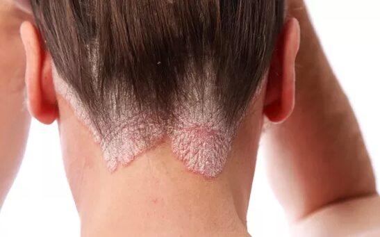 a pikkelysömör betegség jelei, lefolyása és kezelése piros folt jelent meg a lábán fáj
