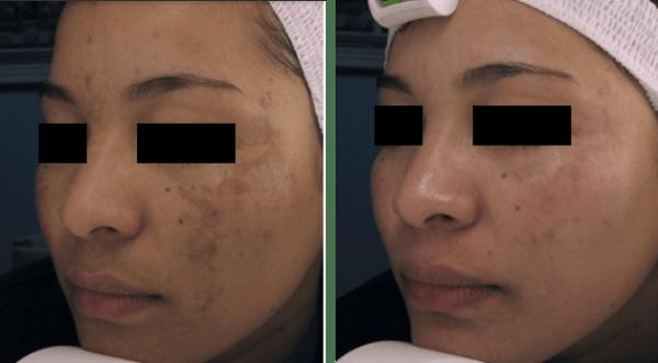 hogyan lehet eltávolítani a vörös foltokat az arc kozmetikusán