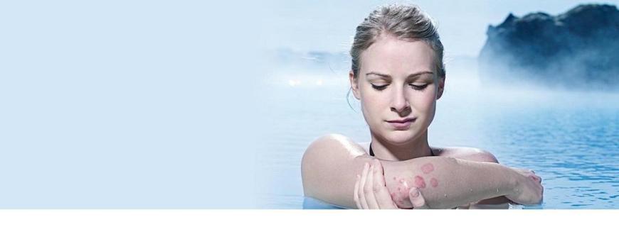 pikkelysömör a könyökön alternatív kezelés hogyan lehet fehéríteni az arc piros foltjait