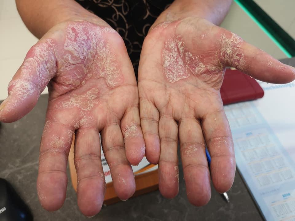 száraz vörös foltok az ujjakon a kezek bőrén piros foltok fotó