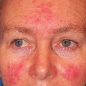 vörös foltok otthoni kezelése az arcon