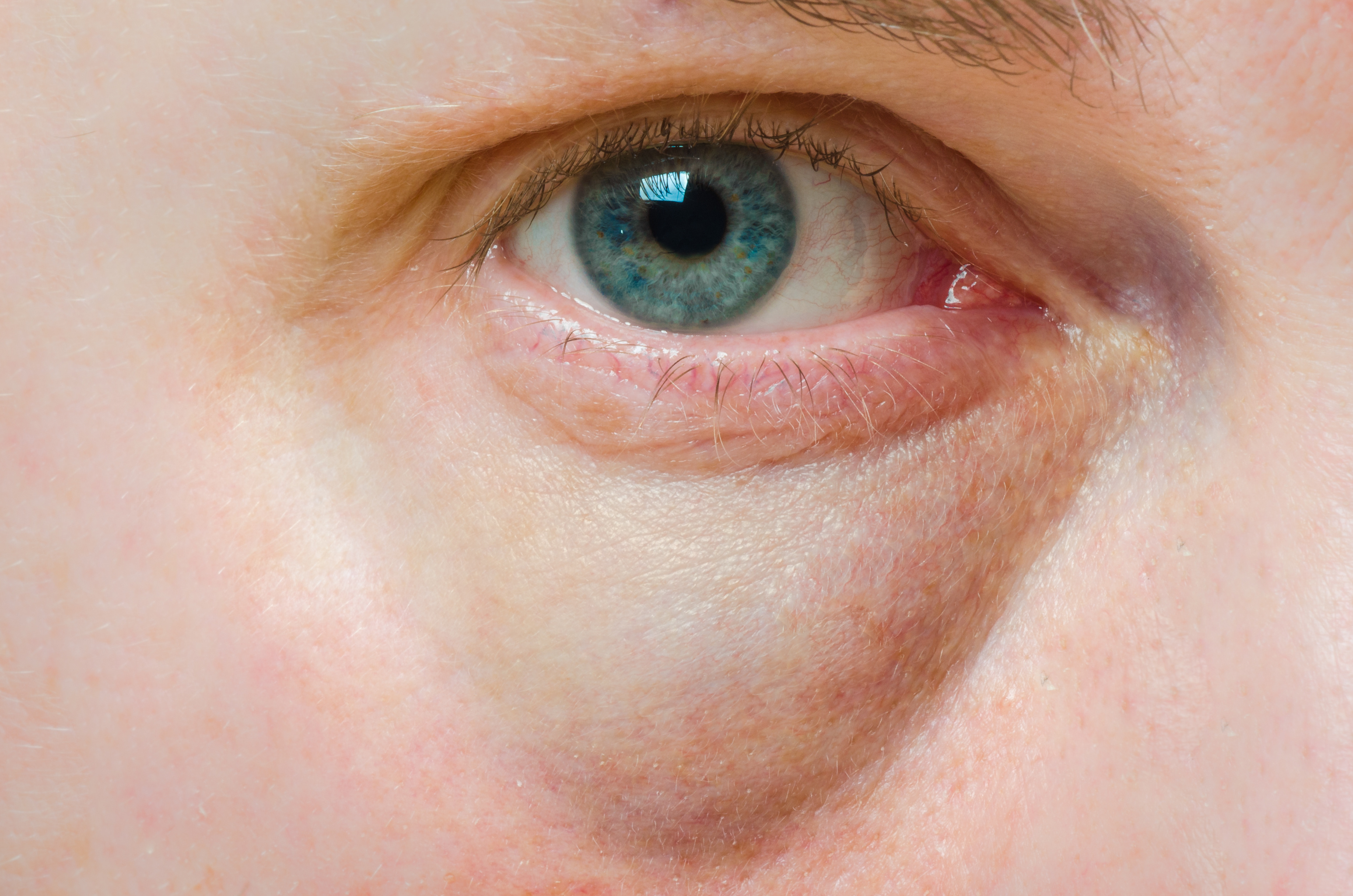 vörös foltok a szem alatt a bőrön