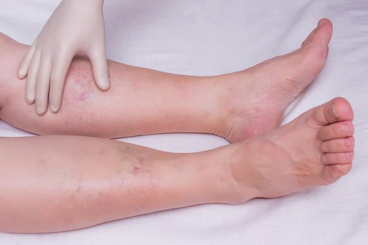 rózsaszín és vörös foltok, a láb duzzanata