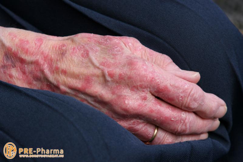 pikkelysömör kezelése szakaszonként miért sírva borítja el az arcát vörös foltok?