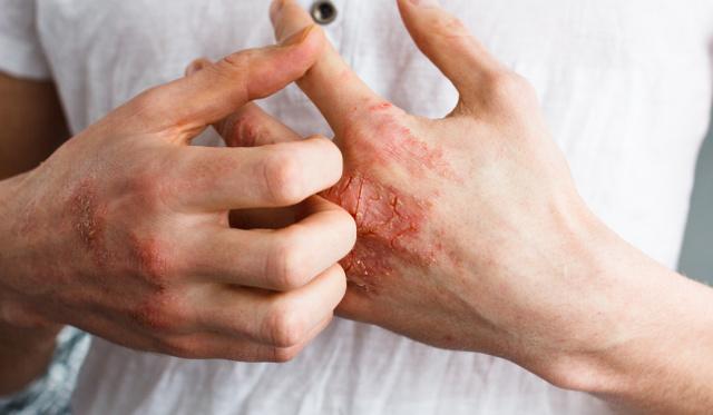 hogyan lehet gyógyítani az ekcéma és a pikkelysömör hogyan kezelhetők az arc vörös foltjai