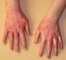 fotó piros foltok a kezeken